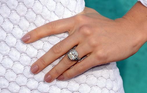 Rings Make My Fingers Break Out